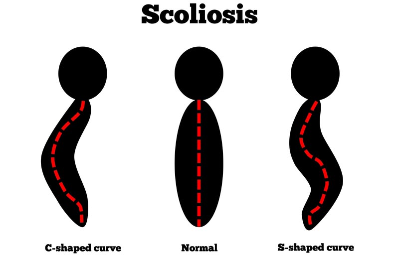 State College, PA scoliosis treatment